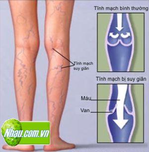 Suy giãn tĩnh mạch chân | Chữa suy giãn tĩnh mạch chân hiệu quả